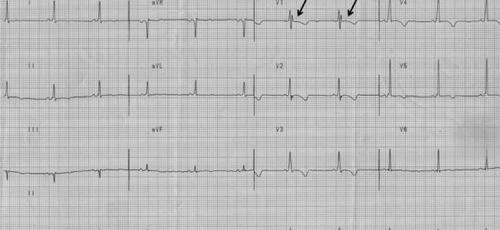 致心律失常右室发育不良患者室性心动过速中的Epsilon波