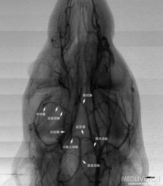 酸钡造影剂显示小鼠全脑血管解剖图-探索应用同步辐射x射线研究脑