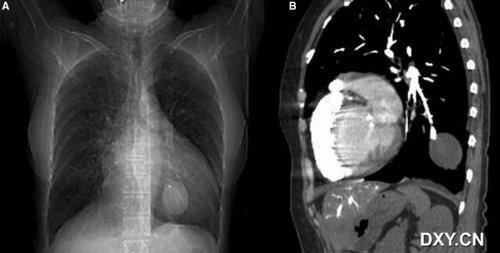 第十四篇 右侧心导管插入后巨大左侧节段性肺动脉假性动脉瘤图片