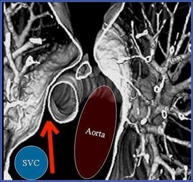 国外纵隔解剖学 应用3D CT影像了解纵隔