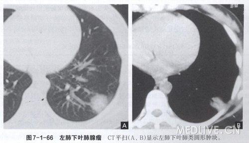 支气管肺癌_haodhdeeee的日志_医脉通