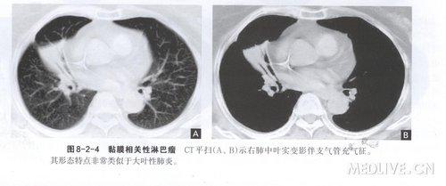 恶性淋巴增生性疾病