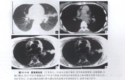 纵隔淋巴结结核-原发型肺结核病