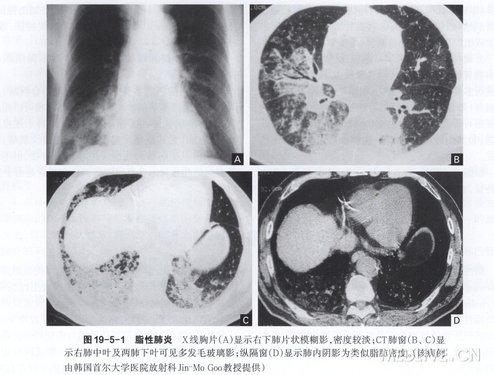 可见纵隔淋巴结增大. CT显示肺实变内的类似脂肪的低密度区(图19-