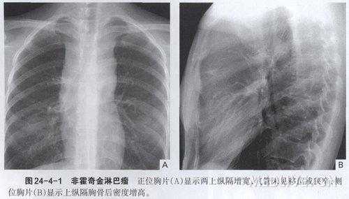 在CT的表现主要是纵隔淋巴结增大或肿大的淋巴结融合形成的不规则