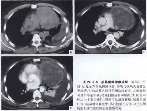 约占20%的病例也可位于纵隔其他位置,包括中纵隔和后纵
