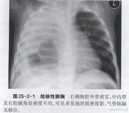 变窄,膈抬高,肋骨内侧可出现骨周炎,脊柱、纵隔形态均可有改变,