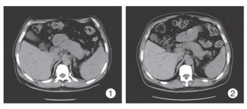 显增大,腹膜后淋巴结肿大;-一例IgG4相关硬化性疾病临床病理分析