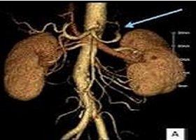 覆膜支架隔绝脾动脉瘤1例