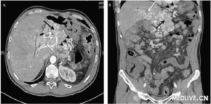 色-a-性_一名有转移性生长抑素瘤的男性的持续性重度胃肠道出血